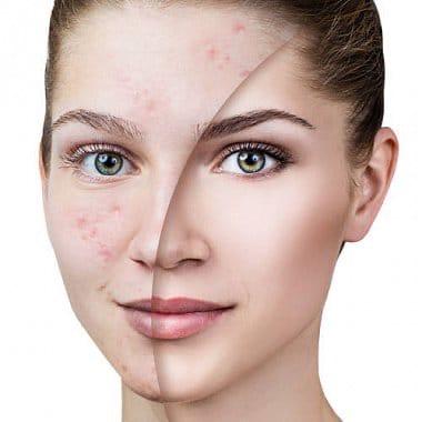 Словом можно навсегда очистить кожу лица
